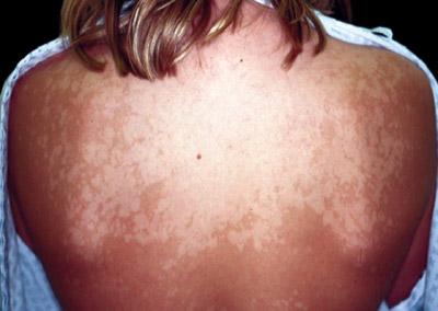 creme cuir chevelu psoriasis